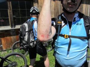 Kleiner Sturz, und schon ist die Haut ab. Aber auch das gehört zu einem Alpencross.